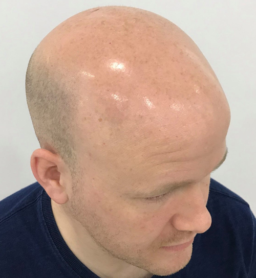 extensivehairloss.jpg