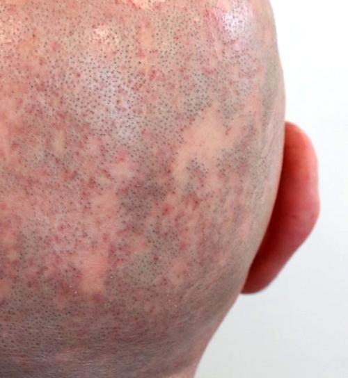 alopeciacases.jpg