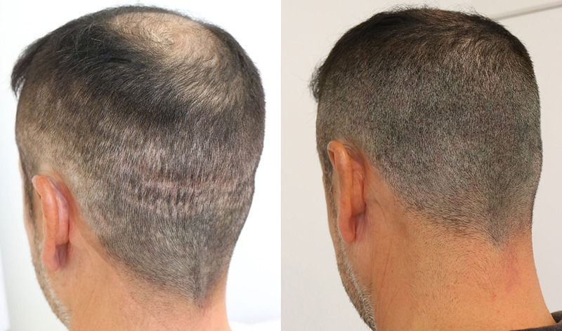 FUE and FUT strip scar camouflage - See Results