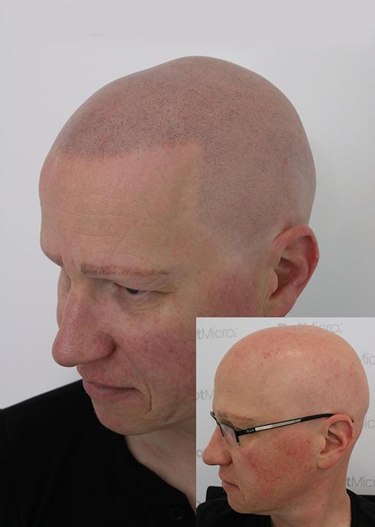 Alopecia Universalis - Results coming soon