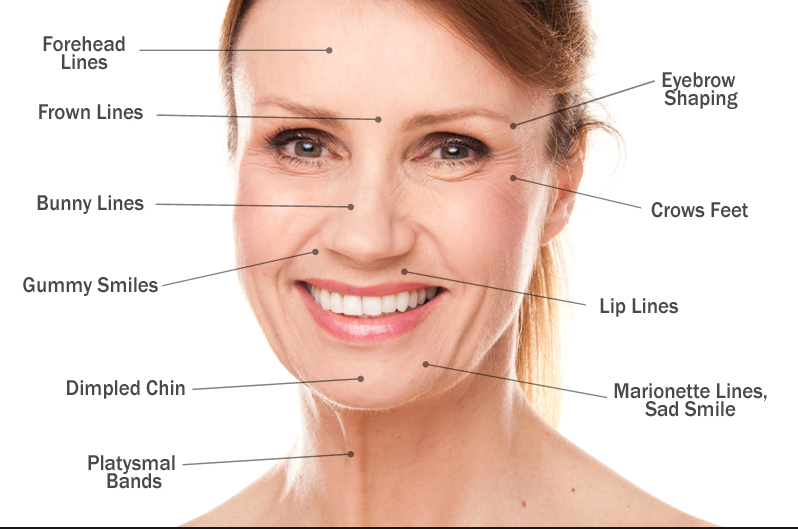 Neuromodulators for Facial Aesthetics can be used for areas shown above.