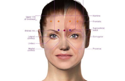 Botox-model-975x640.png
