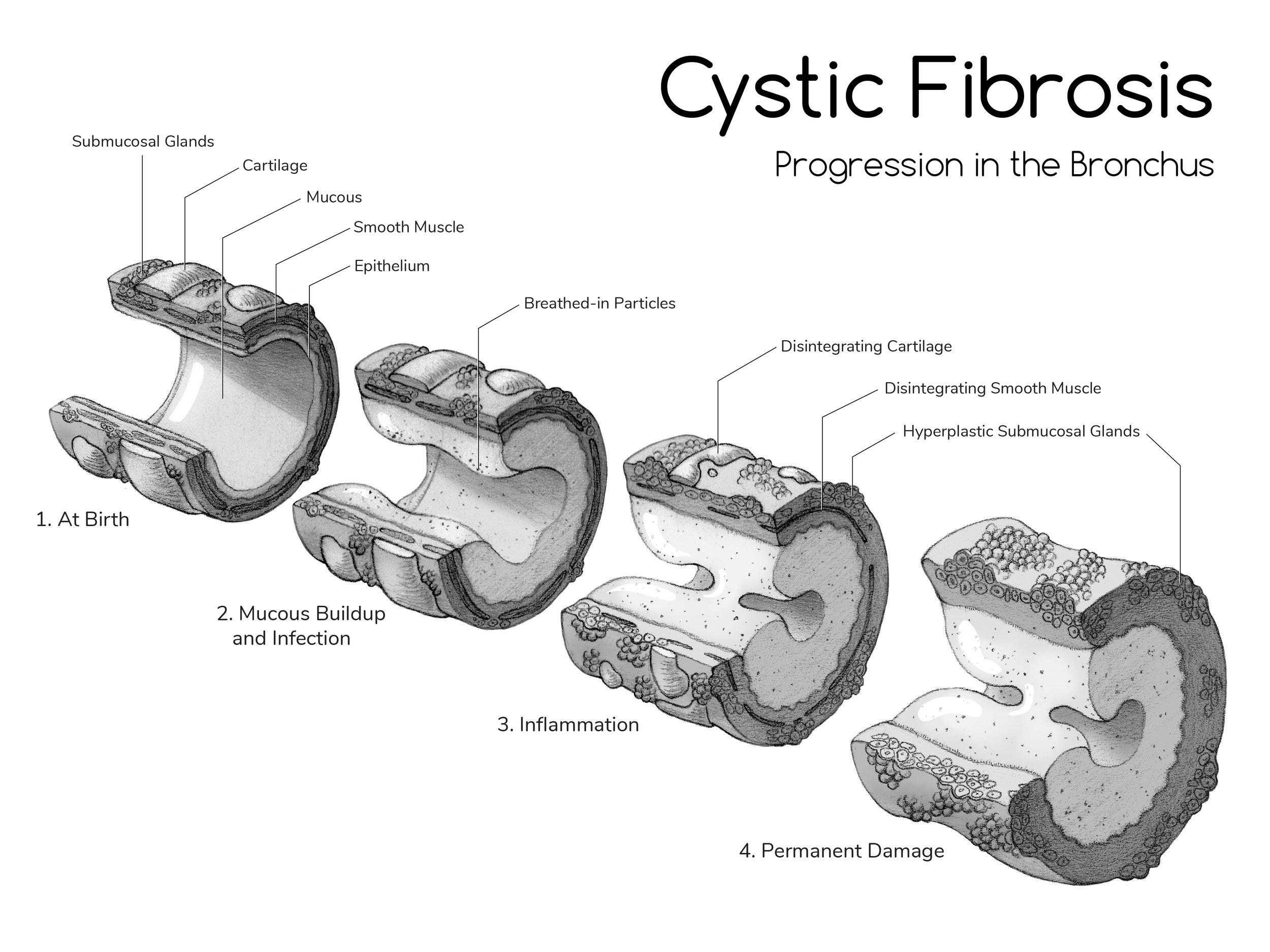 Bronchus Tissue Cubes-01.jpg