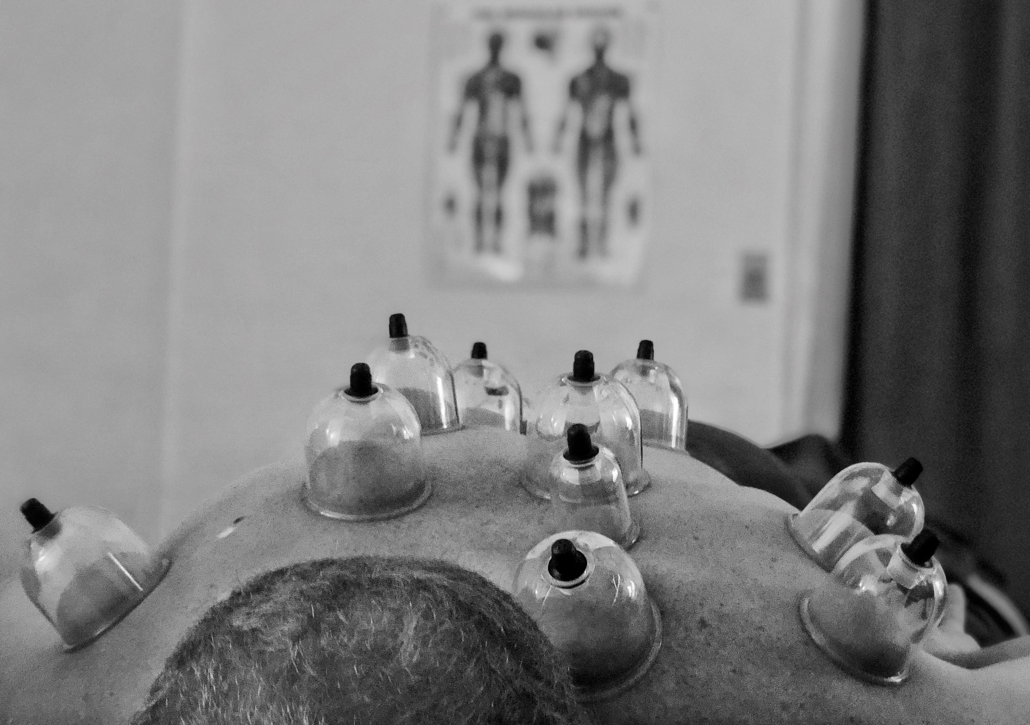 Cupping Treatment - 60 MINUTES $70•75 MINUTES $85Cupping Therapy provides concentrated blood flow to areas of tension to target chronic stagnation and increase healing. Cupping has several benefits including: respiratory health, digestive health, chronic tension, limited (ROM) range of motion, acute pain, and overall well being. If you're interested in this amazing modality, please ask if cupping is appropriate during your treatment.