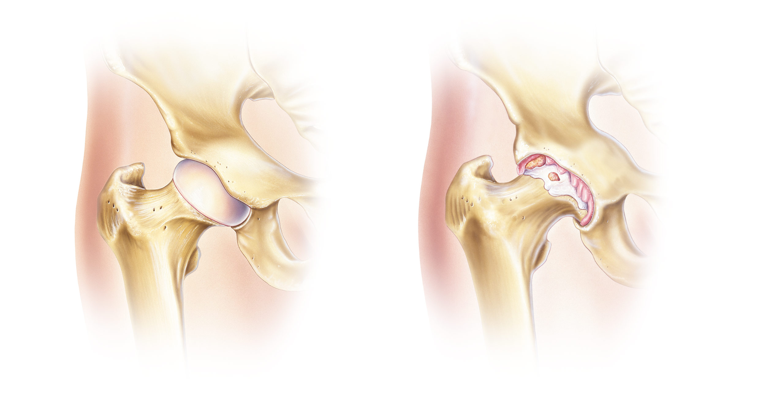 Left: Healthy Hip Joint.  Right: Hip Joint affected by Osteoarthritis.