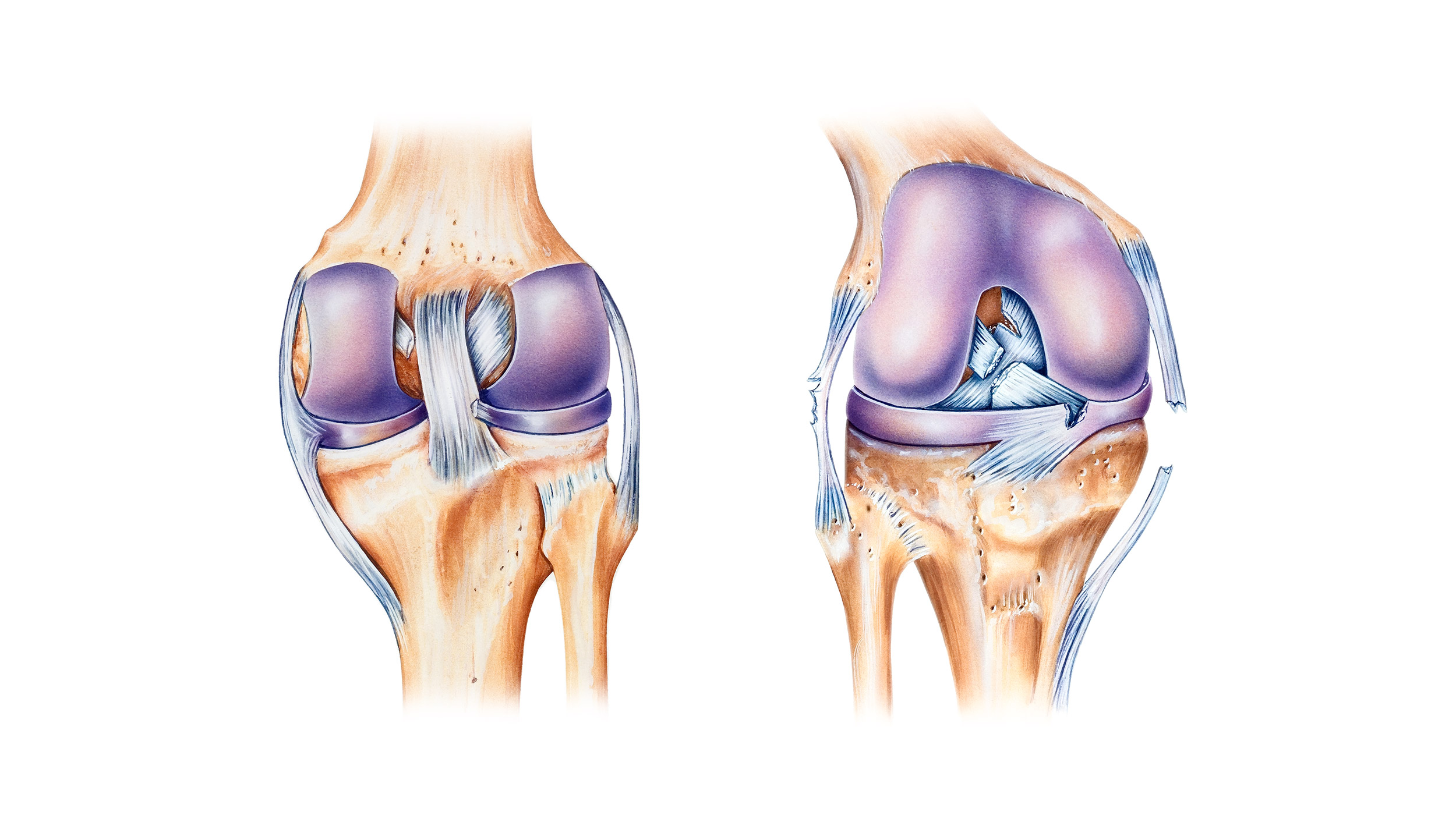 Left: Anterior view of torn ACL.  Right: Posterior view of knee joint affected by multiple torn ligaments.