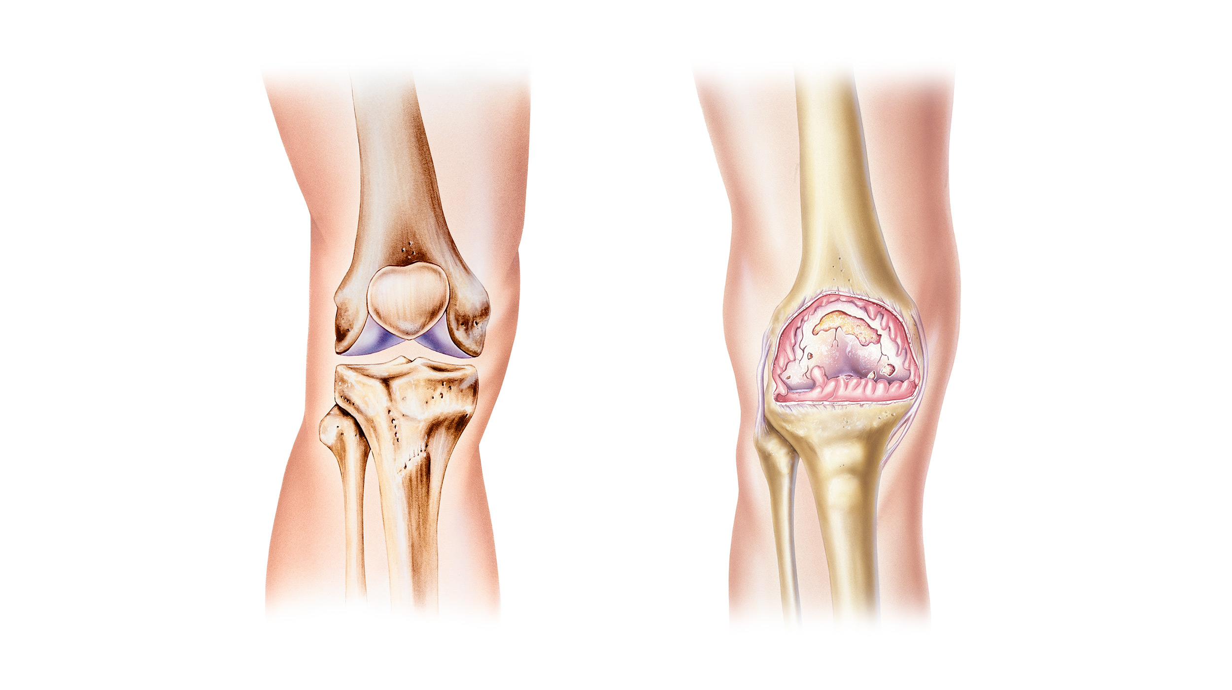 Left: Healthy Knee Joint. Right: Knee Joint affected by Osteoarthritis.