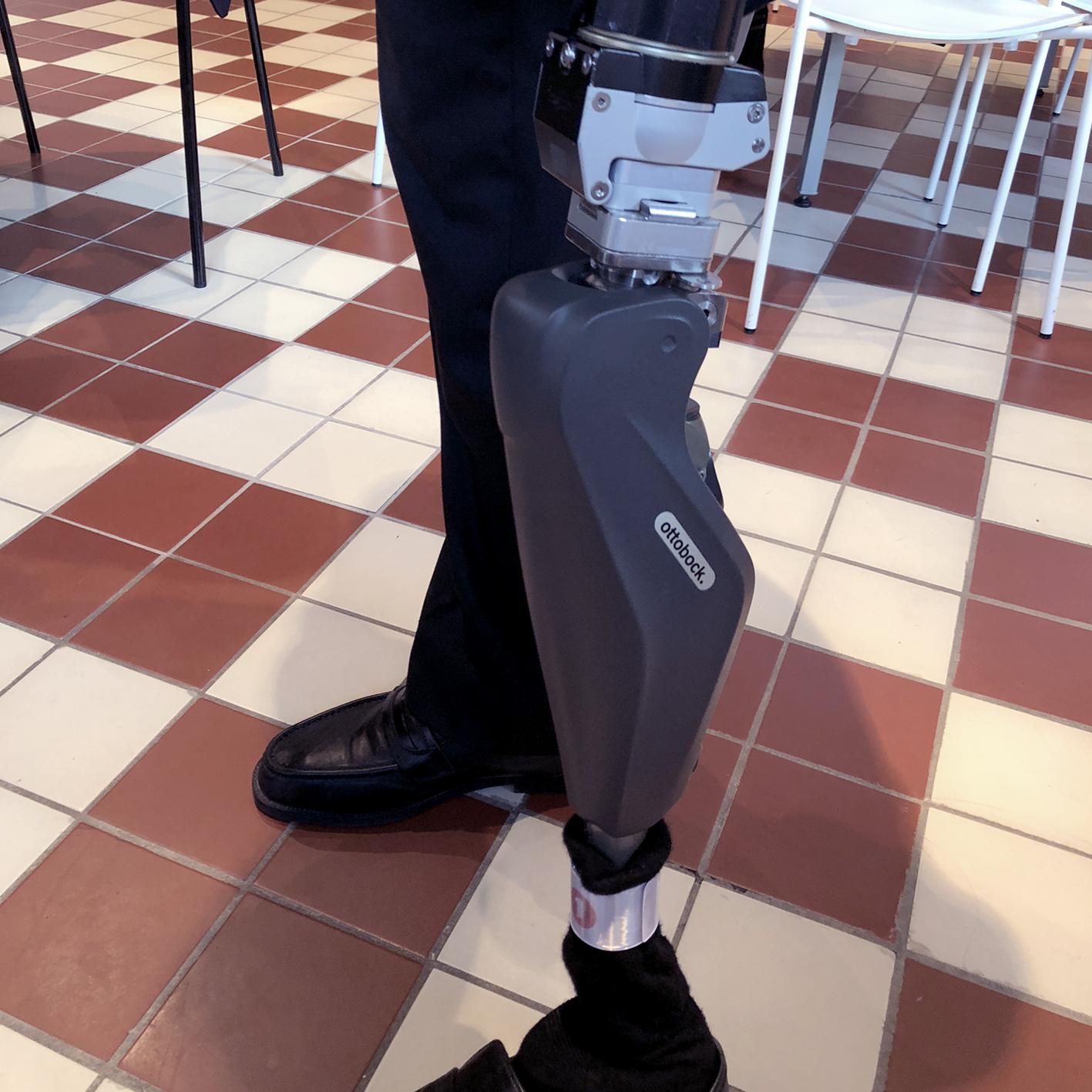 2017: Erik's latest prosthesis