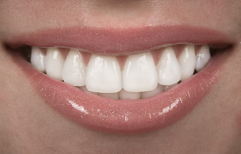Close-up of beautiful teeth following cosmetic dentistry in Sunderland
