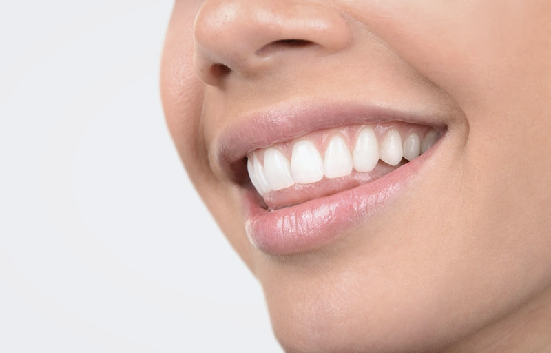 Close-up of beautiful, straight teeth following a smile makeover at the dentist