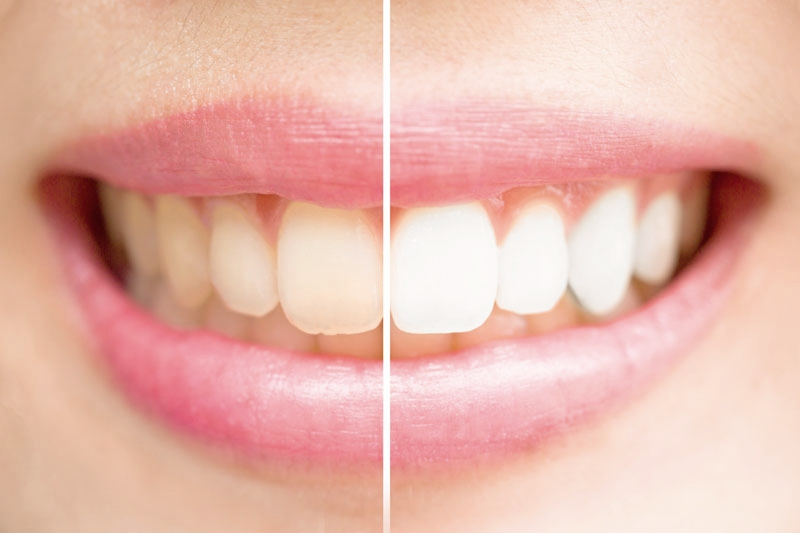 David Vaughan Dental Care Teeth Whitening offer - We are currently offering teeth whitening for £199.00