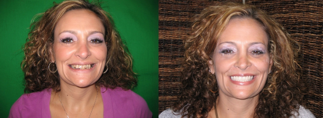Before and after photos of a patient who received same day provisional upper and lower implant supported fixed bridges.The after photo was taken 3 weeks after the surgery.