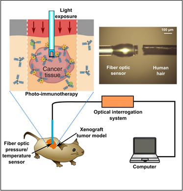 PIT is a molecular targeting cancer therapy with minimum side effects. PIT has been demonstrated to effectively treat cancer cells without damaging surrounding normal tissue. To better understand and optimize the effectiveness of this therapy, it is important to measure and study the change of physiological parameters (e.g. interstitial pressure, temperature, etc). This project will develop a miniature multifunctional fiber optic sensor, which provides a real-time monitoring tool to study and monitor PIT therapeutic effect in vivo.