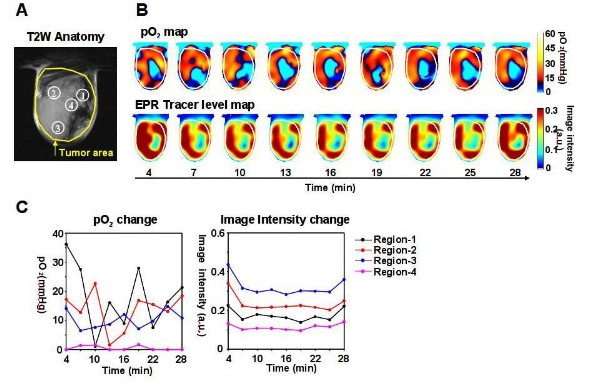 Example of a dynamic EPR imaging of a single 2D slice demonstrating tissue oxygenation (Fig 1)Figure 1(A) T2-weighted anatomical MR image of a tumor in the skeletal muscle of a mouse. (B) Dynamic images of calculated pO2 and EPRI signal intensity after tracer injection. (C) Temporal dynamics of pO2 and EPRI the regions shown in A.