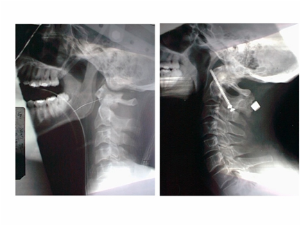 On the left – after 5 days of traction – the right – after surgery
