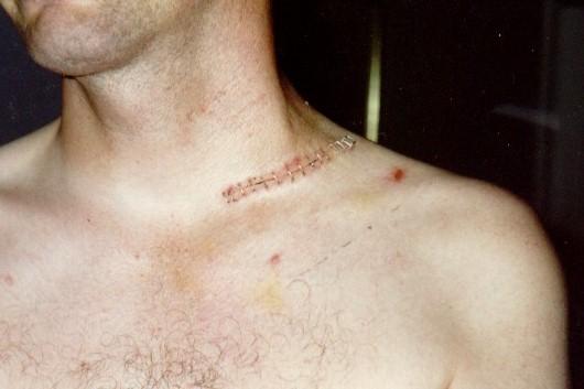 Surgery to fix shoulder