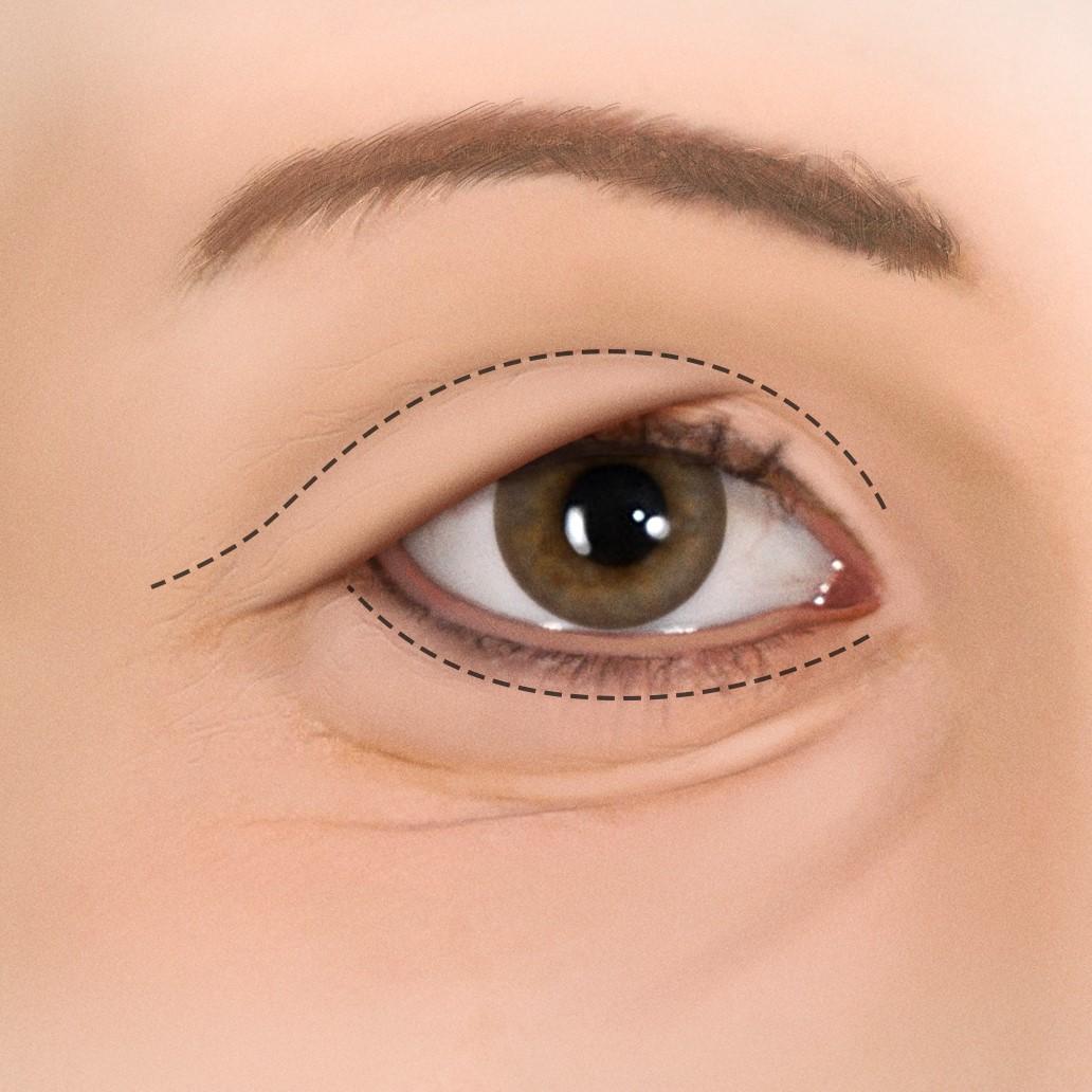 Blepharoplasty.jpg