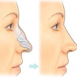 Nose-Job-Surgery-Operation.jpg