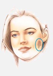 Reconstructive Face Procedures.jpg