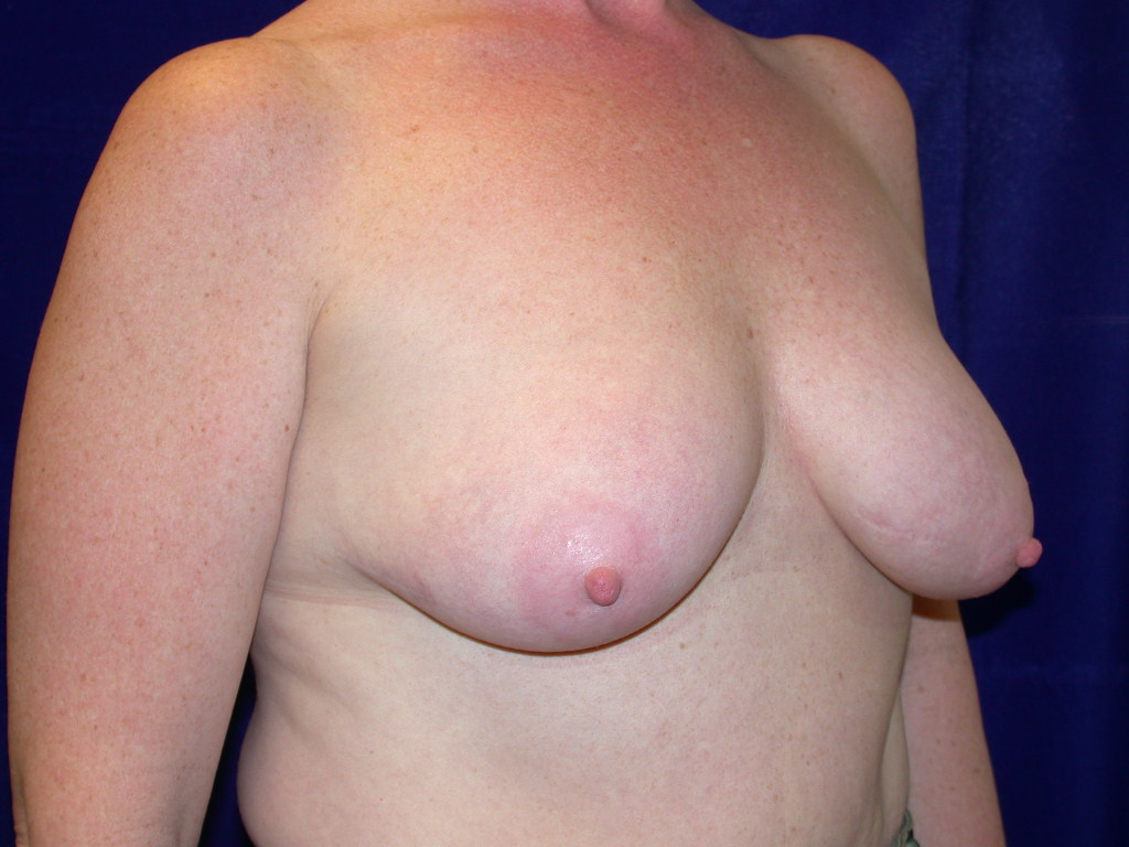 mastopexy0003a before3.jpg