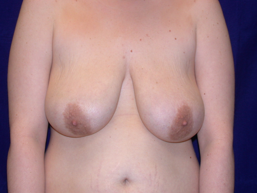 mastopexy0004a before4.jpg
