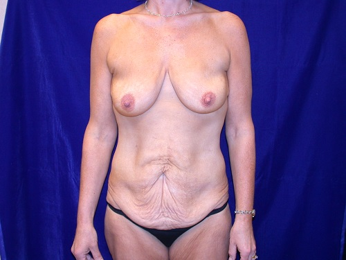 bodylift0004a before2.jpg