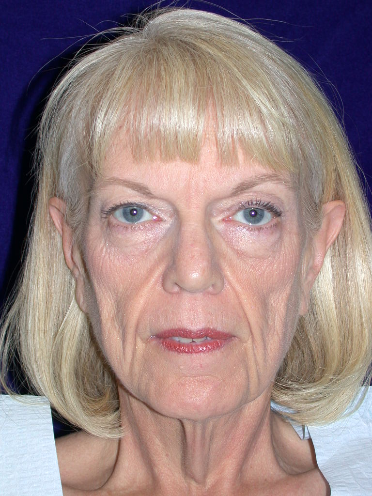 facelift0002a before2.jpg