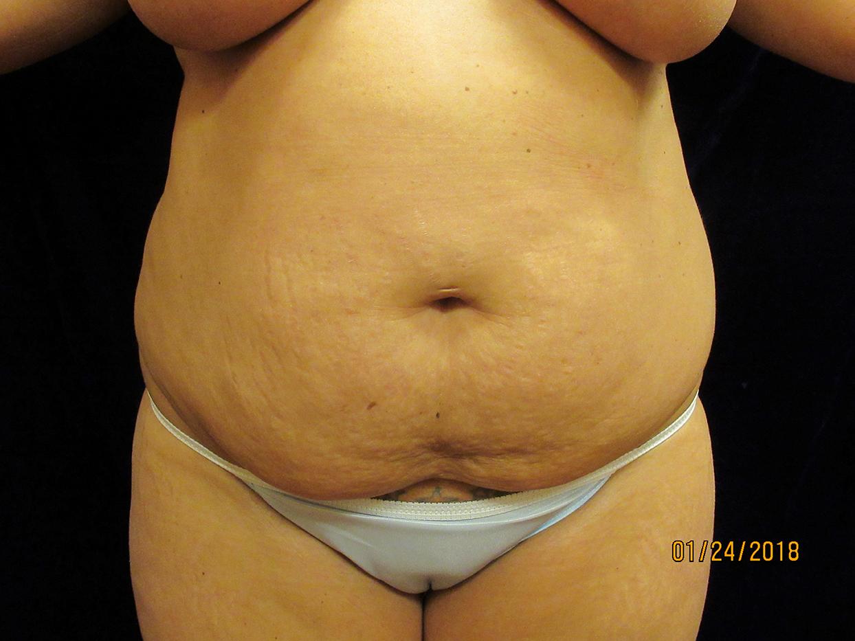 beckerplastic_abdominoplasty_tummytuck_mommymakeover_abdominoplastyresults_bodycontour_cosmeticsurgery_transformation_bismarck (11).JPG