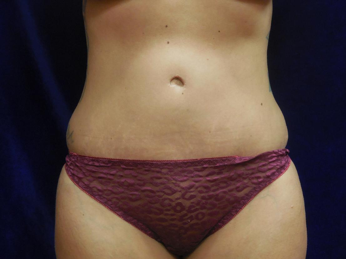 beckerplastic_abdominoplasty_tummytuck_mommymakeover_minitummytuck_abdominoplastyresults_bodycontour_tummy_bismarck (11).JPG