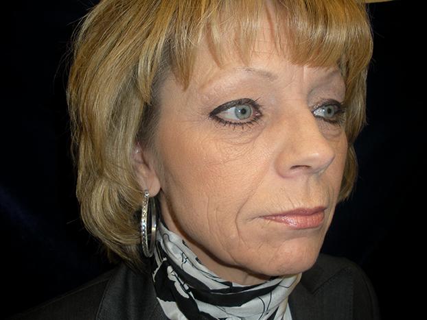 beckerplastic_facelift_looseskin_wrinkles_necklift_plasticsurgeon_beforeandafter_selfcare_surgery_plasticsurgery_looseneck_agedface_bismarck (39).jpg
