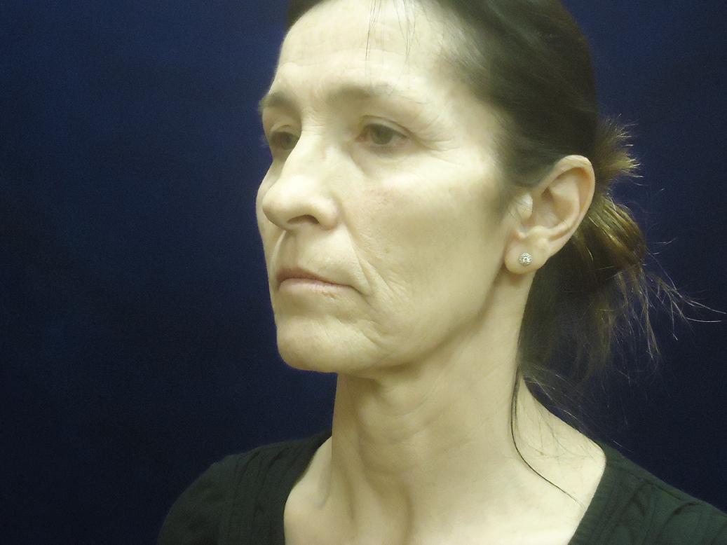 beckerplastic_facelift_looseskin_wrinkles_necklift_plasticsurgeon_beforeandafter_selfcare_surgery_plasticsurgery_looseneck_agedface_bismarcknd (34).jpg