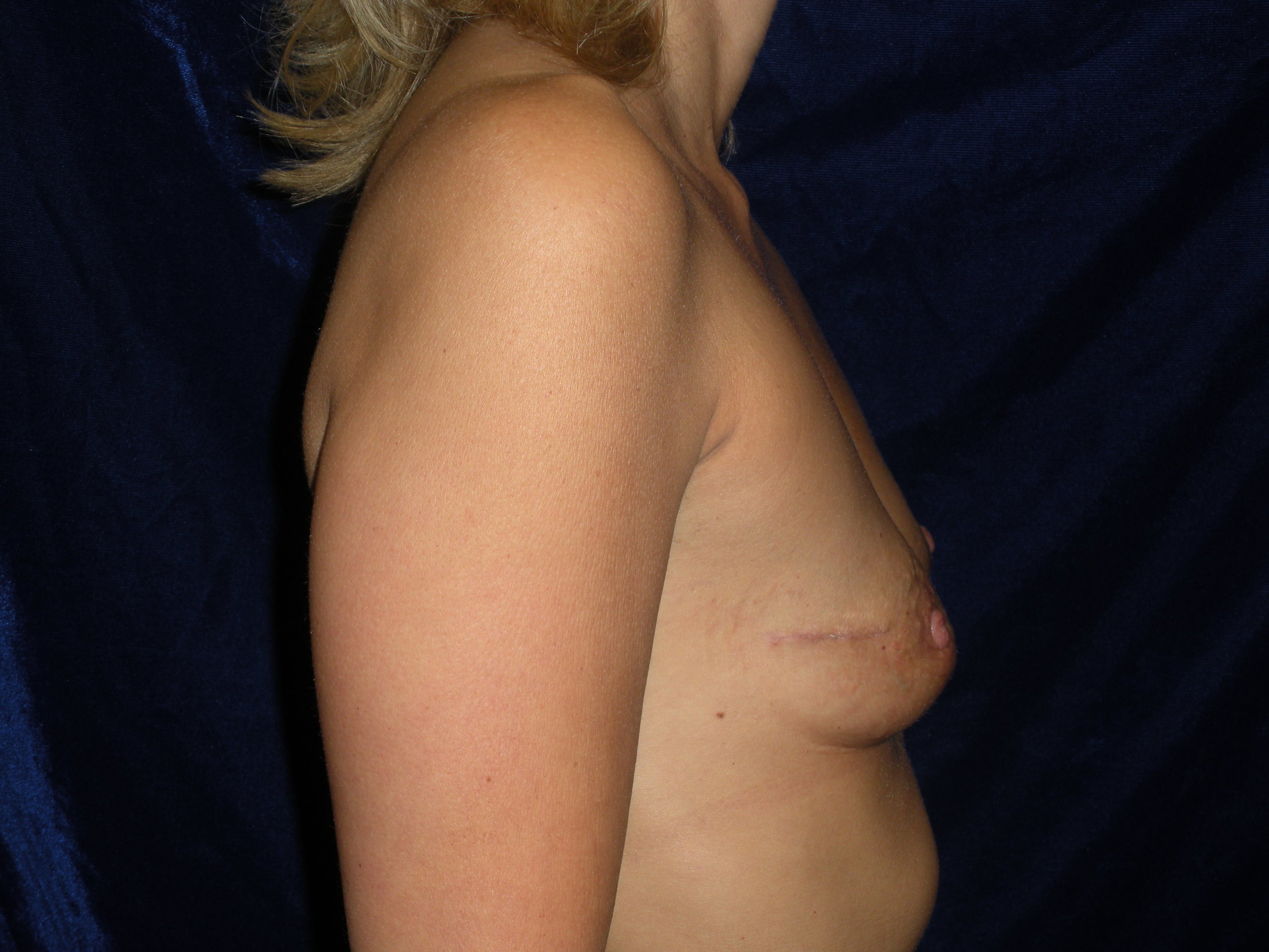 beckerplasticsurgery_breastreconstruction_breastsurgery_breastjob_beforeandafter_plasticsurgeon_selfcare_bismarck (20).JPG