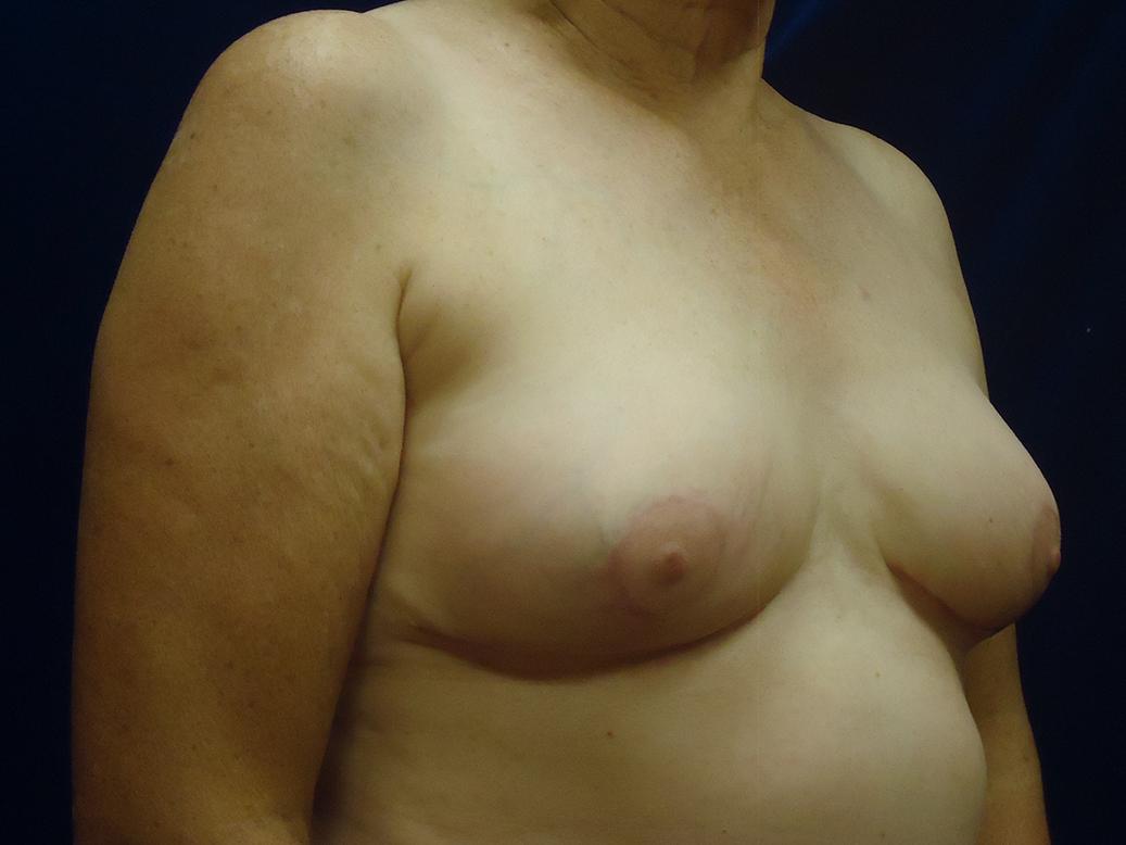 beckerplasticsurgery_breastlift_mastopexy_selfcare_plasticsurgeon_cosmeticsurgery_beforeandafter_bismarcknd(8).jpg