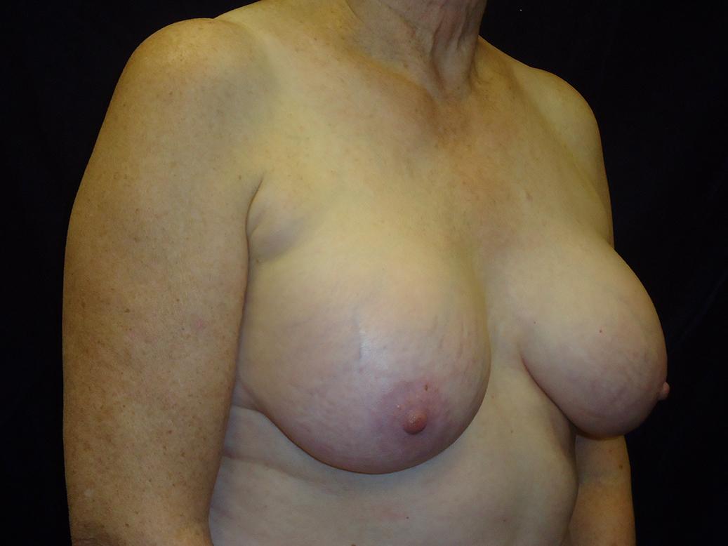 beckerplasticsurgery_breastlift_mastopexy_selfcare_plasticsurgeon_cosmeticsurgery_beforeandafter_bismarcknd(6).jpg