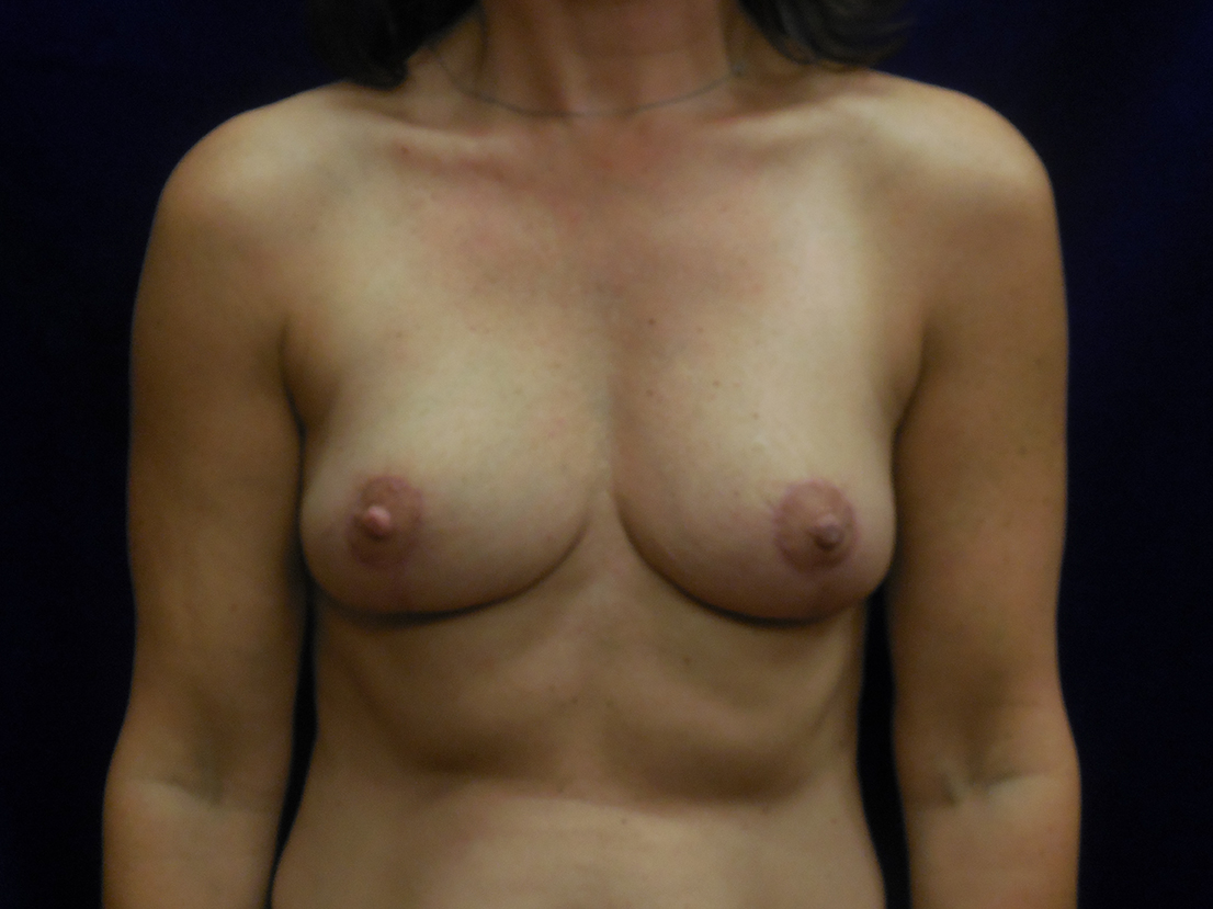 beckerplasticsurgery_breastlift_mastopexy_mommymakeover_transformation_breastjob_boobjob_bismarck (14).jpg