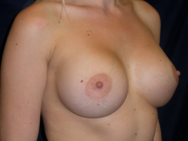 beckerplasticsurgery_breastagumentation_boobjob_plasticsurgeon_transformation_mommymakeover_bismarck (8).jpg