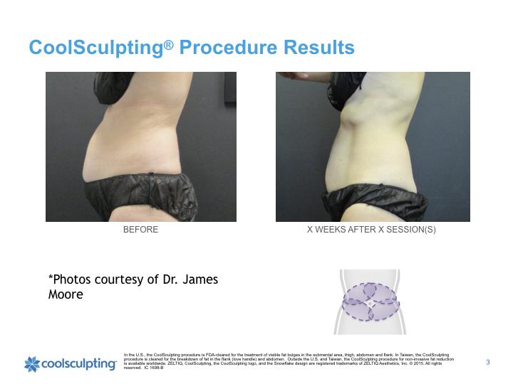 woman-waist-coolsculpting.002.jpeg