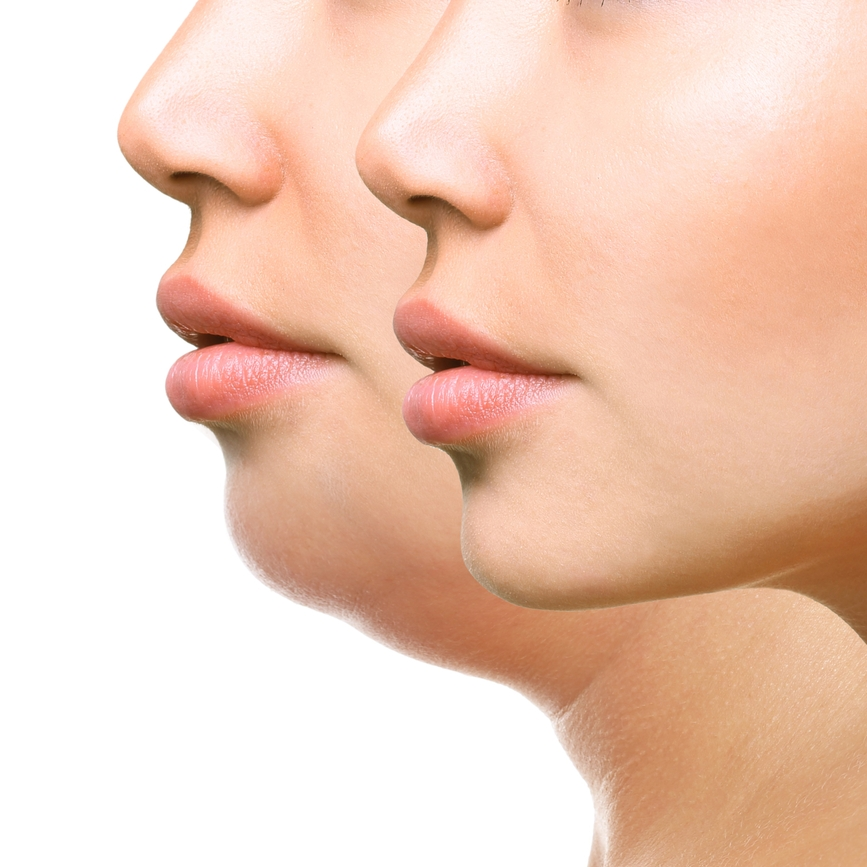 Chin Liposuction - One of the most common techniques in plastic surgery is Liposuction. Chin Liposuction treats the chin and jawline to create definition between the jaw and the neck.Surgery: Outpatient or in officeEst.Surgery Time: 1-3 HourPost-surgical: Compression garment for 2 weeksEst. Recovery Time: Resume normal activities in 4 weeks