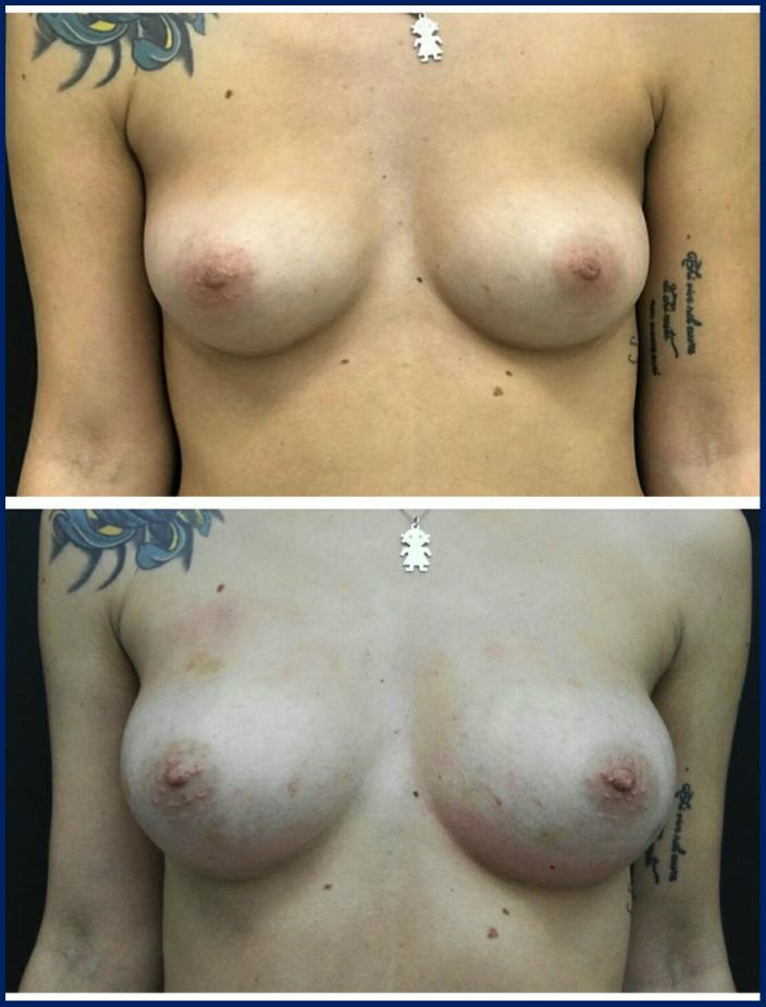 breast befaft2.png