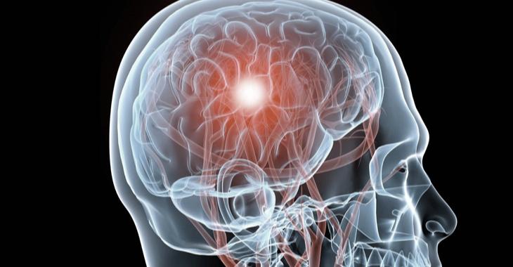 Brain_Injury_Treatment_Tolland_CT.jpg