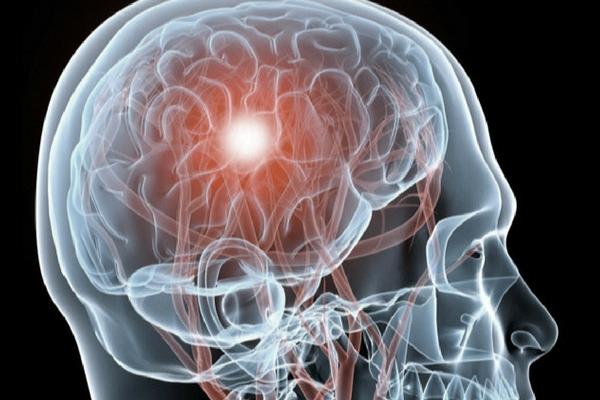 Brain Injury -