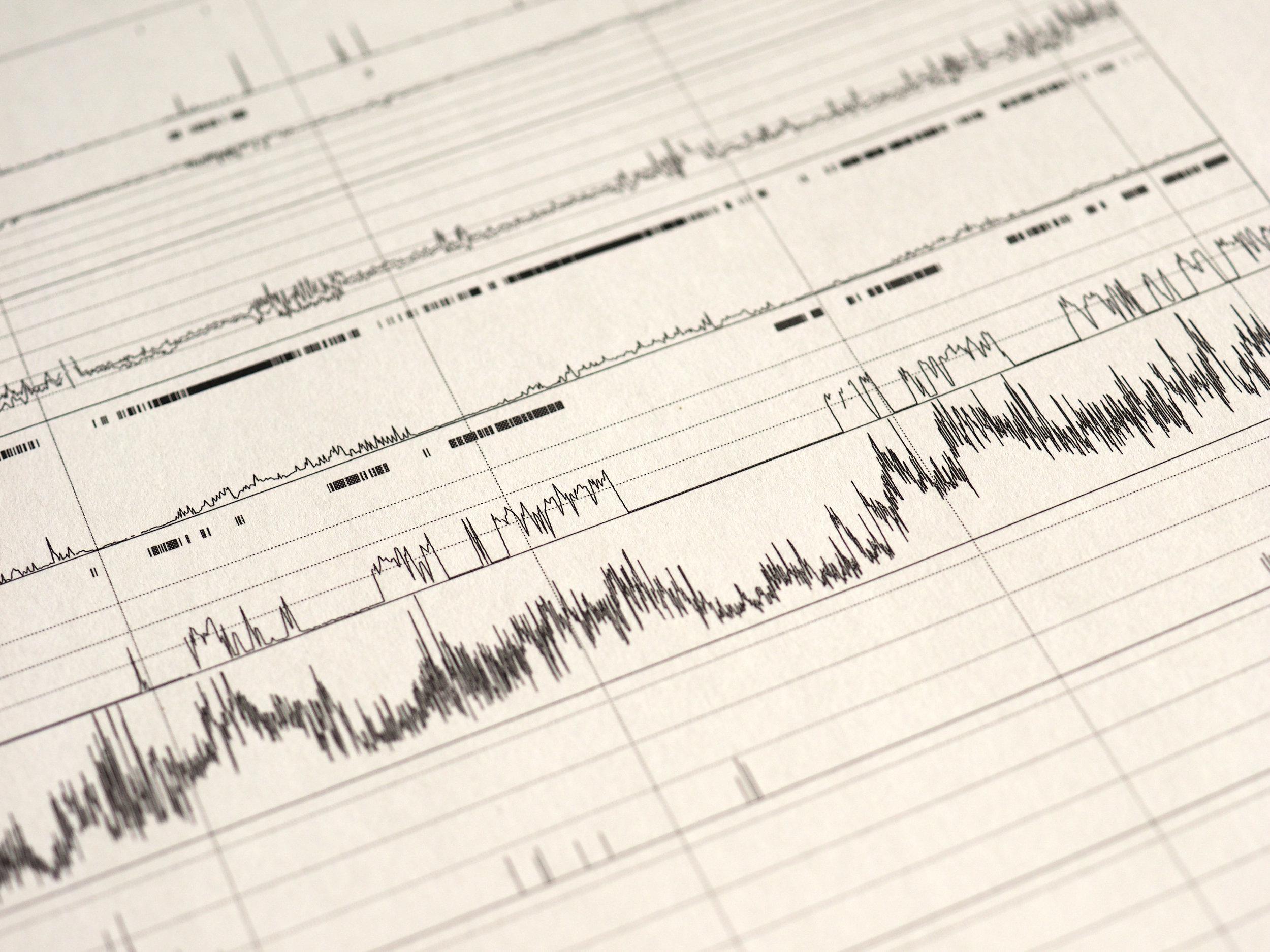 polysomnography monitoring to diagnose sleep disorders like sleep apnea