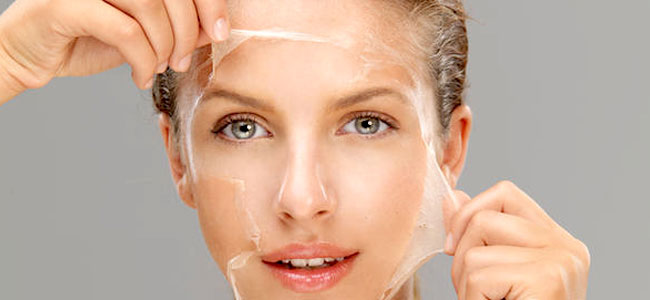 graphic-chemical-peel.jpg