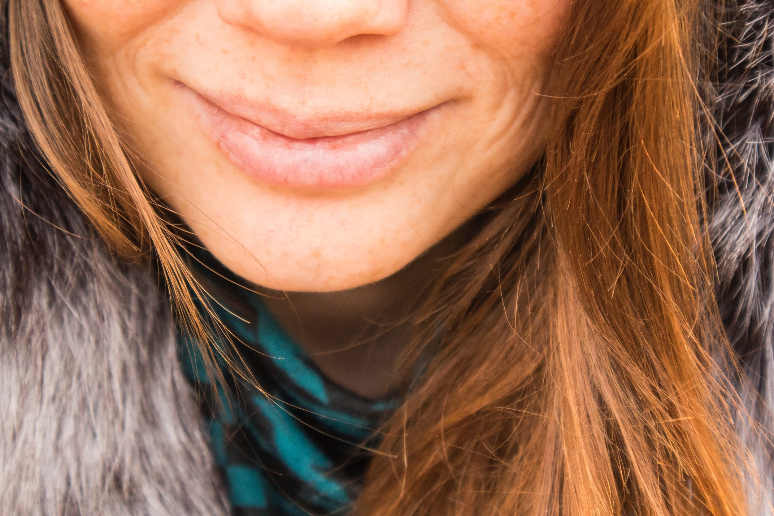 How to Heal Your Adult Acne