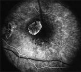 Leaking Blood vessels in an eye with Wet AMD
