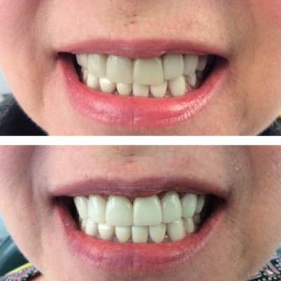 Six upper and six lower crowns