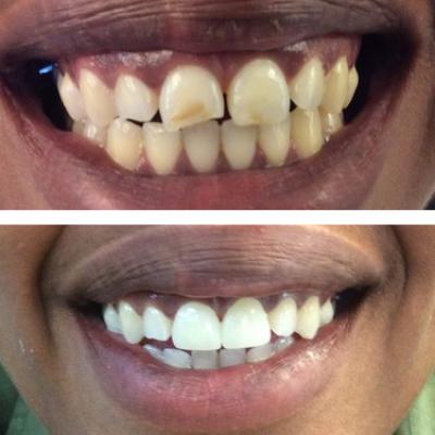 Two veneers and teeth whiting