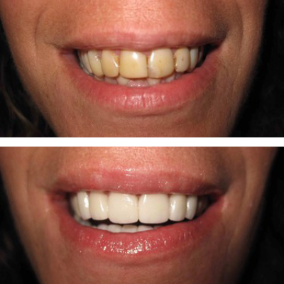 Upper crowns and whitening