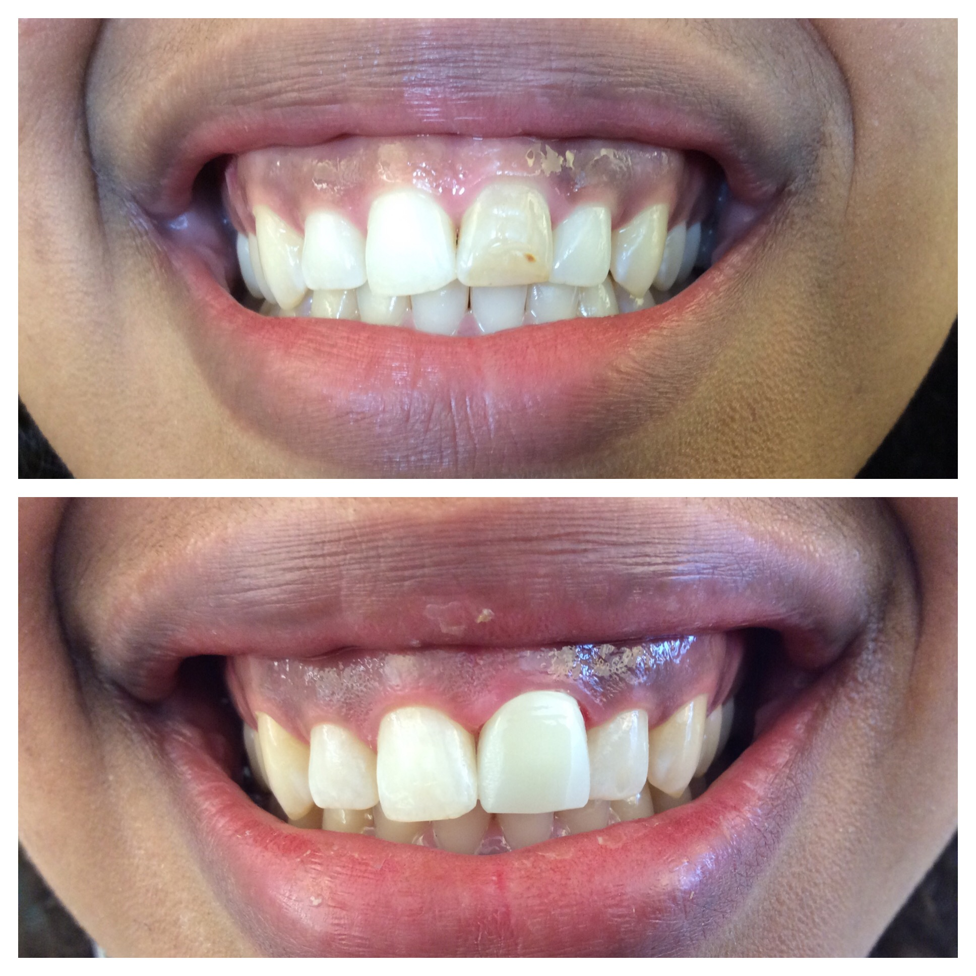 Anterior tooth repaired