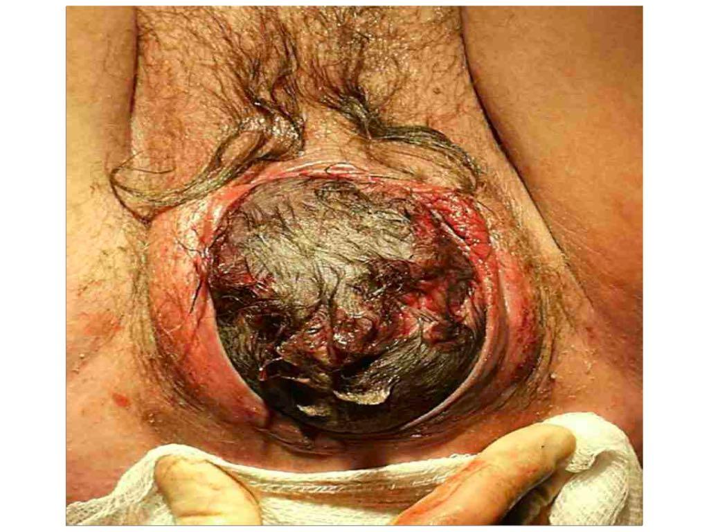 anal sphincter trauma 2015.004.jpg